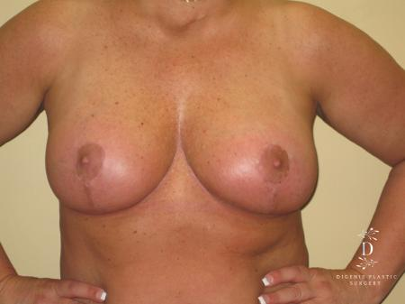 Breast Lift With Implants: Patient 7 - After Image 1