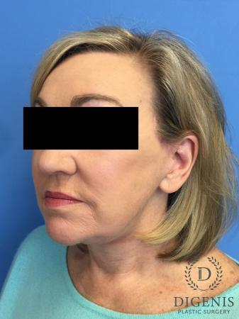 Facelift: Patient 2 - After Image 2