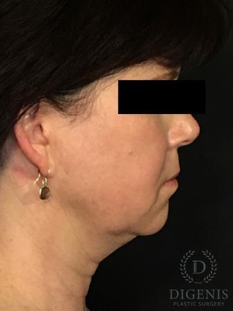 Digenis Refresh Lift: Patient 4 - Before Image 3