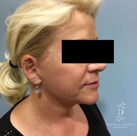 Facelift: Patient 12 - After Image 2