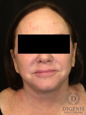 Facelift: Patient 13 - After Image 1