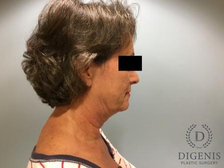 Facelift: Patient 15 - Before Image 3