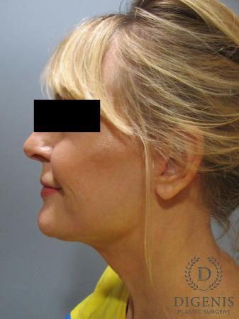Facelift: Patient 5 - After Image 5
