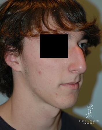 Rhinoplasty: Patient 9 - Before Image 2