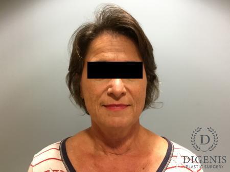 Facelift: Patient 15 - Before Image 1