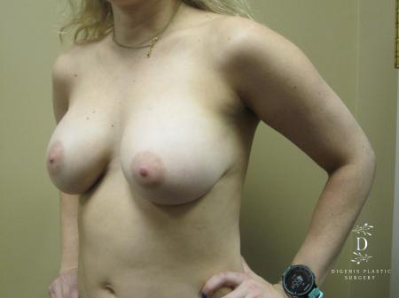 Breast Augmentation: Patient 13 - After Image 4