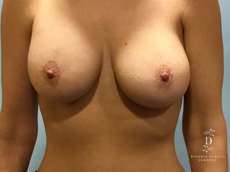 Breast Lift With Implants: Patient 5 - After Image 1