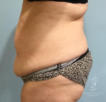 Abdominoplasty: Patient 5 - Before and After Image 5