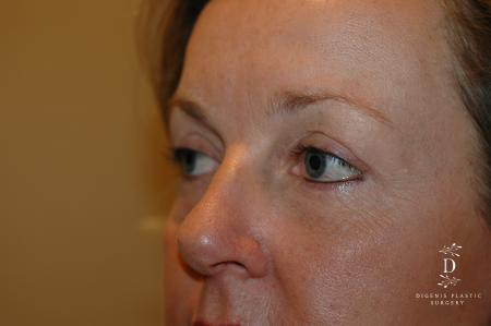 Eyelid Surgery: Patient 8 - After Image 3