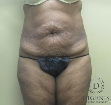 Abdominoplasty: Patient 4 - Before Image 1