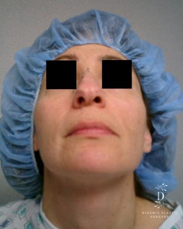 Rhinoplasty: Patient 5 - Before and After Image 6