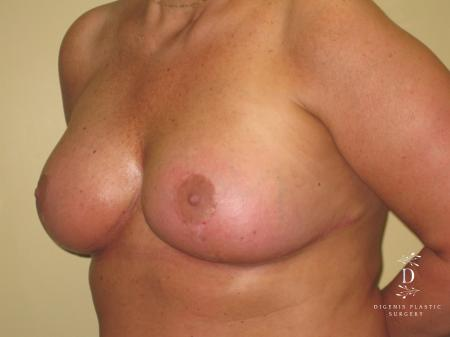 Breast Lift With Implants: Patient 7 - After Image 4