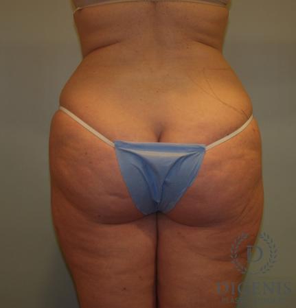 Liposuction: Patient 4 - Before Image 2