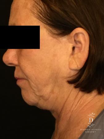 Facelift: Patient 13 - Before and After Image 5