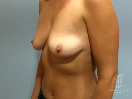Breast Lift With Implants: Patient 5 - Before Image 4