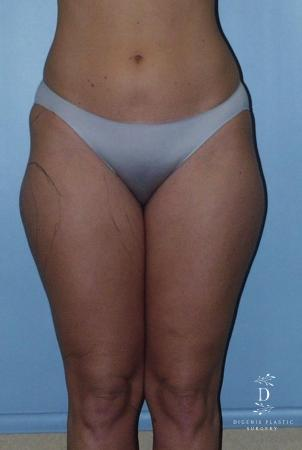 Liposuction: Patient 3 - Before Image 1