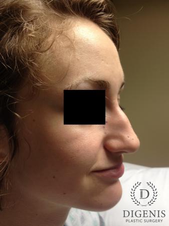 Rhinoplasty: Patient 4 - Before Image 2