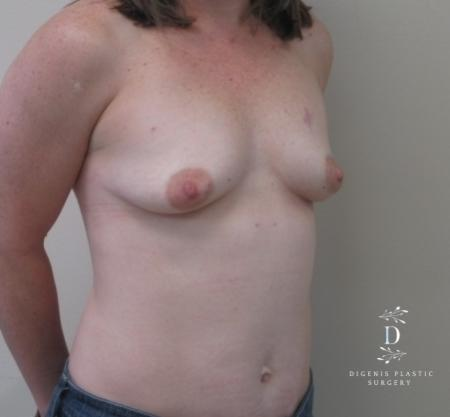 Breast Lift With Implants: Patient 1 - Before Image 2