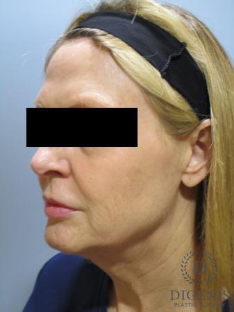 Facelift: Patient 5 - Before Image 4