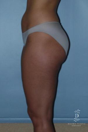 Liposuction: Patient 3 - Before and After Image 4