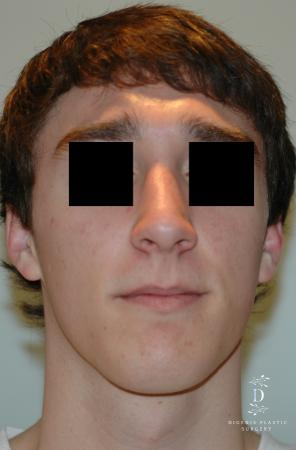 Rhinoplasty: Patient 9 - After Image
