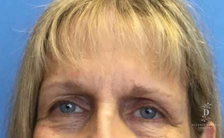 Eyelid Surgery: Patient 4 - Before Image