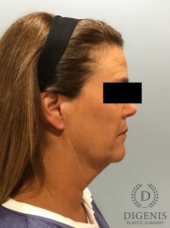 Facelift: Patient 11 - Before Image 3