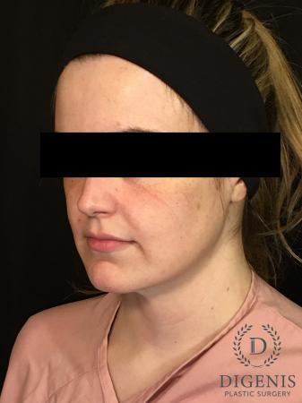 Digenis Refresh Lift: Patient 2 - Before Image 2