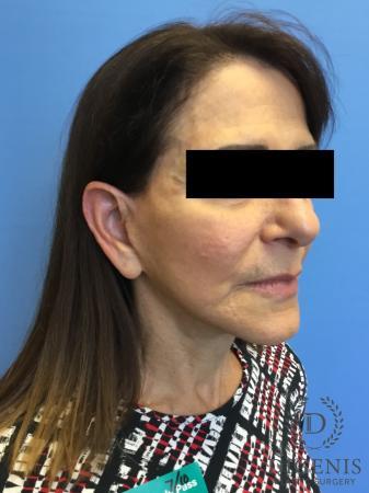 Facelift: Patient 6 - After Image 2