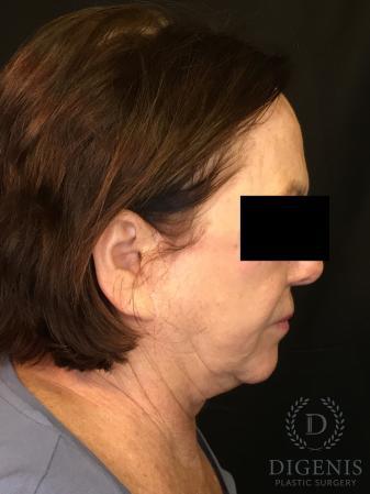 Facelift: Patient 13 - Before Image 3