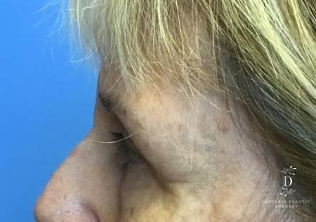 Eyelid Surgery: Patient 4 - Before and After Image 5