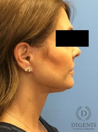 Facelift: Patient 10 - After Image 3