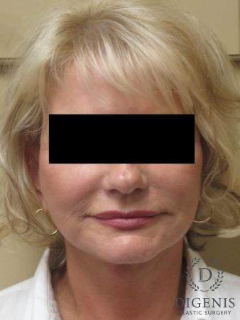 Facelift: Patient 14 - After Image 1