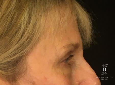 Eyelid Surgery: Patient 4 - After Image 3