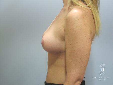 Breast Lift: Patient 7 - After Image 5