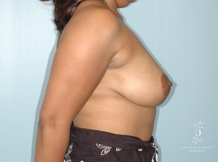 Breast Lift: Patient 2 - After Image 2