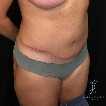 Abdominoplasty: Patient 3 - After Image 2
