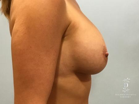 Breast Lift With Implants: Patient 5 - After Image 3