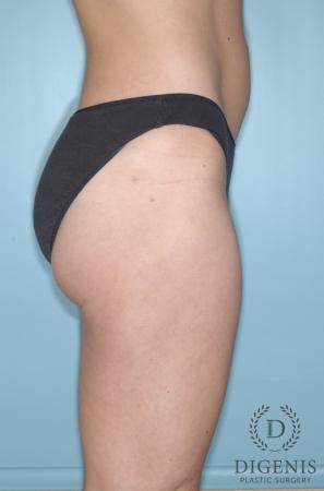 Liposuction: Patient 6 - After Image 3