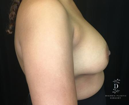 Breast Augmentation: Patient 14 - After Image 2_2
