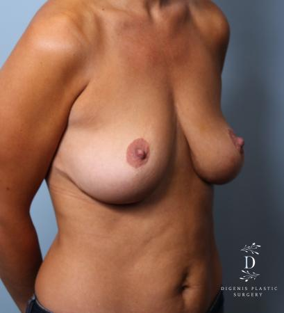 Breast Augmentation: Patient 10 - Before Image 2