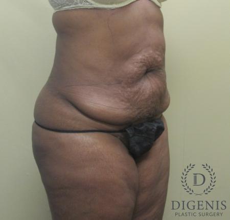 Abdominoplasty: Patient 4 - Before Image 2