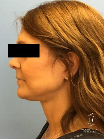 Facelift: Patient 10 - After Image 5