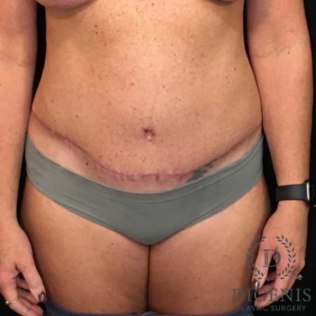 Abdominoplasty: Patient 3 - After Image 1