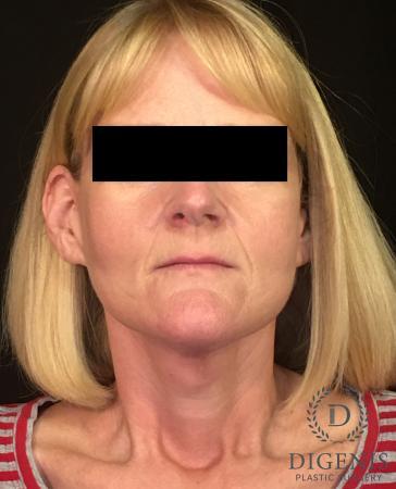 Facelift: Patient 3 - After Image