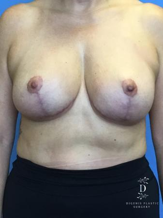 Breast Lift With Implants: Patient 2 - After Image 1