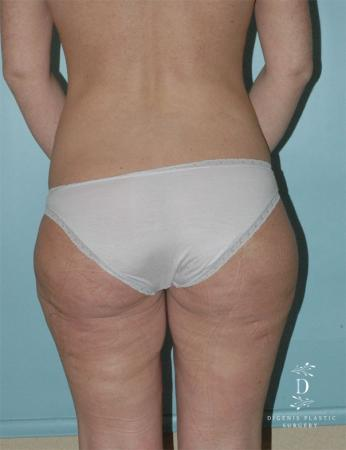 Liposuction: Patient 1 - Before and After Image 2