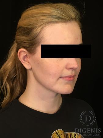 Digenis Refresh Lift: Patient 2 - After Image 4