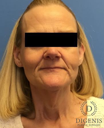 Facelift: Patient 3 - Before Image