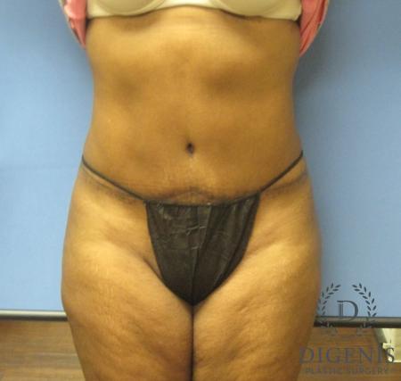 Abdominoplasty: Patient 4 - After Image 1